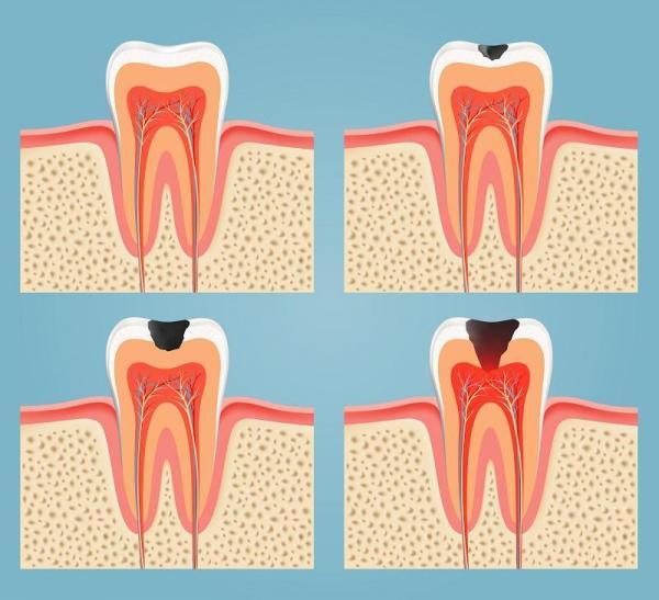 Causas del dolor molar - Caries