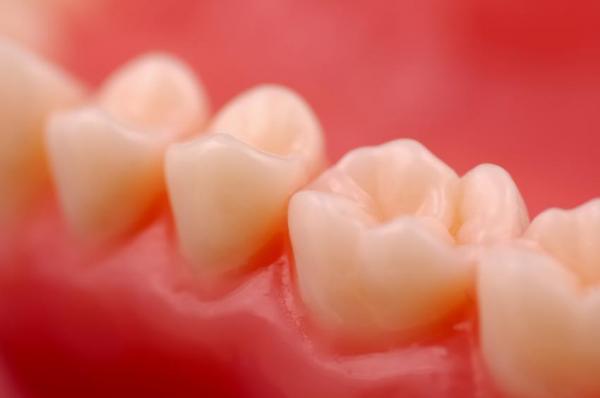 Causas del dolor molar: gingivitis y periodontitis