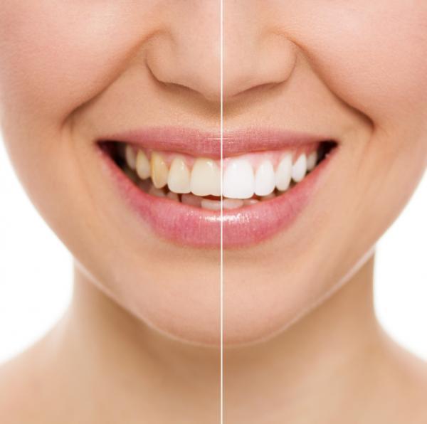 Dientes amarillos: el remedio de la abuela: cómo obtener los dientes blancos rápidamente
