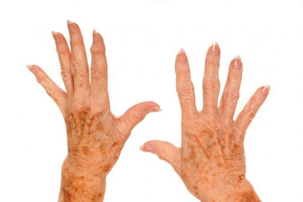 ¿Por qué tengo manchas en las manos? - Manchas en la piel de las manos causadas por la vejez (manchas de la edad):