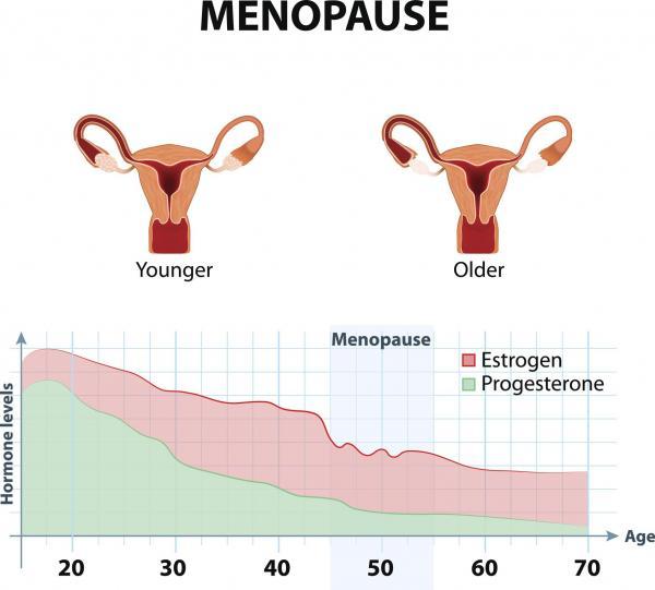 ¿Por qué estoy sangrando sin tener mi período? - Sangrado vaginal que ocurre después de la menopausia.
