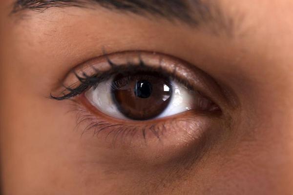 Cómo quitar las bolsas debajo de los ojos - ¿Por qué aparecen las bolsas debajo de los ojos?