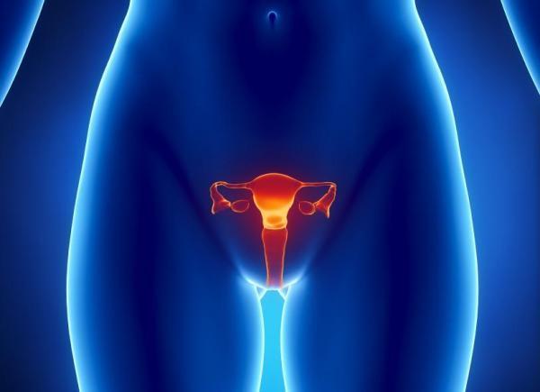 Pellizco de los ovarios: ¿por qué?  - Dolor u hormigueo en los ovarios.