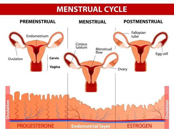 Pellizco de los ovarios: ¿por qué?  - Dolor u hormigueo en los ovarios durante la menstruación.