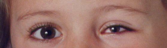 Por que tengo un ojo más pequeño que el otro - coloboma papilar
