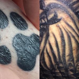 Pourquoi mon tatouage est en relief