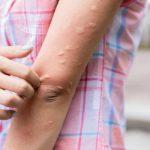 ¿Cómo aliviar la picadura de un mosquito?